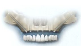 zygoma-implantation